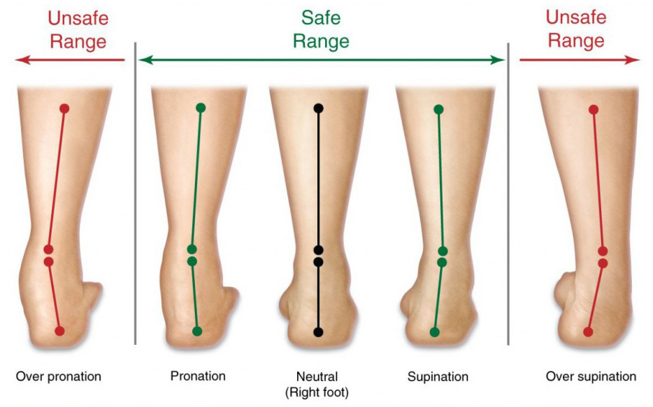 Abnormal foot movements