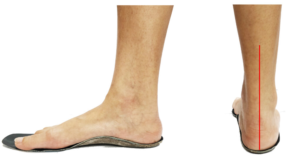 Insoles for flat feet and over pronation
