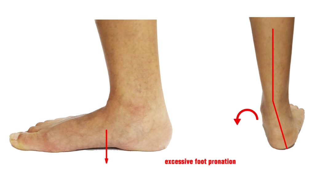Custom insoles for flat foot and over pronation